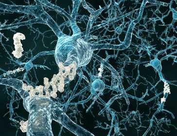 Alkermes shares shoot up as it unveils positive trial data for depression drug
