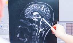 IQ-AI Limited - IQ-AI's Imaging Biometrics developing technology that could 'revolutionise brain tumour imaging'