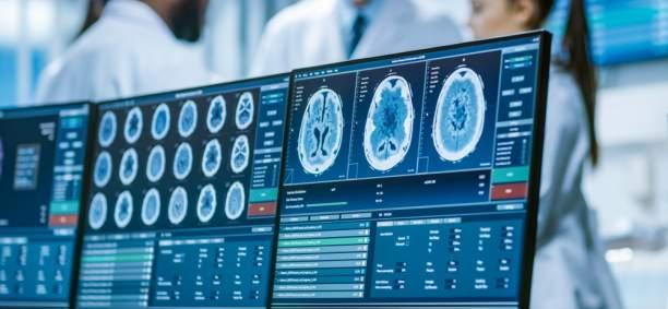 Bioasis Technologies Inc. - Bioasis has the best platform technology for shuttling drugs across the blood-brain barrier